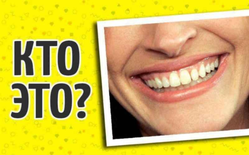 Сможете ли вы отгадать знаменитость по голливудской улыбке?