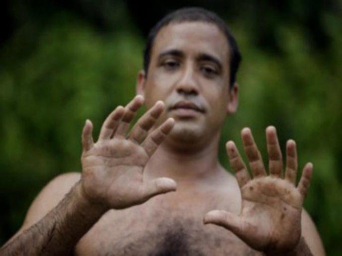 Этот кубинец родился с шестью пальцами на каждой руке