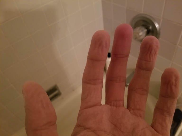 пальцы становятся морщинистыми