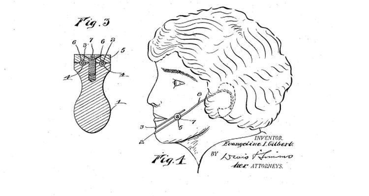 Устройство для создания ямочек на щеках