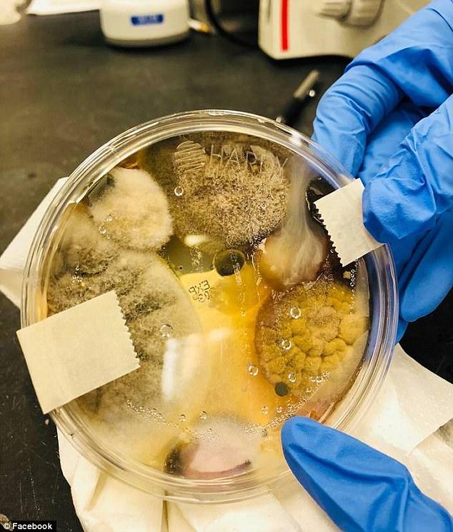 Это несколько штаммов возможных патогенных грибов и бактерий