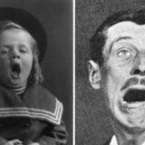Сонная болезнь – таинственный недуг в истории медицины