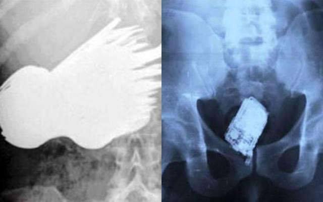 26 невероятных вещей, найденных у человека в кишечнике