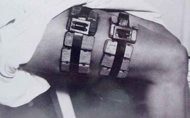 Жуткие медицинские инструменты прошлого