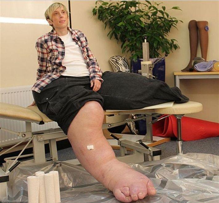 самые большие в мире ноги