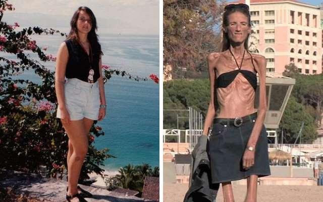 Жизнь и смерть самой худой женщины на планете
