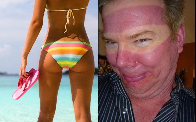 Интересные факты о загаре и солнечных ожогах