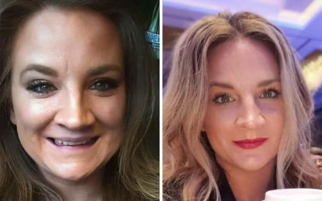 20 людей до и после того, как они отказались от алкоголя