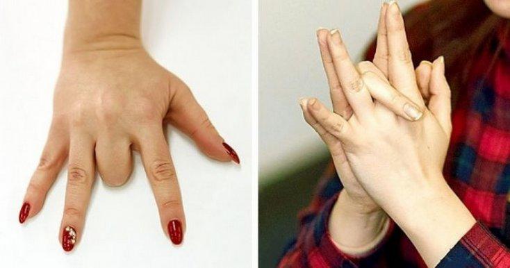 Парализованный палец