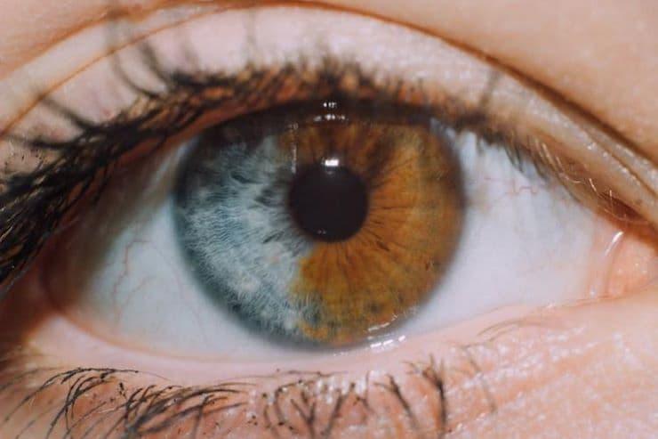 двухцветный глаз