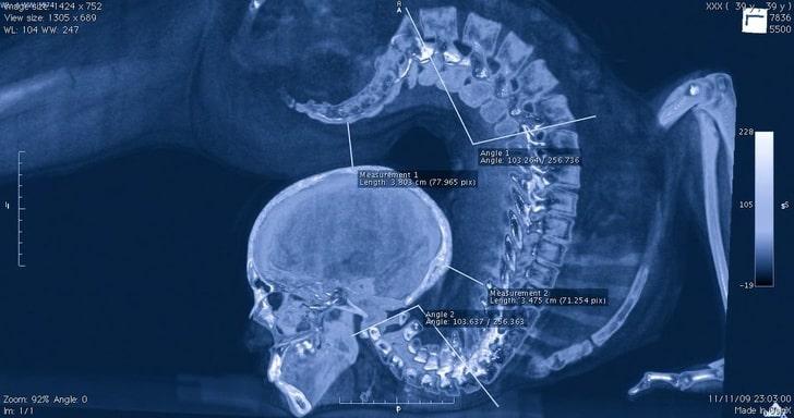рентгеновский снимок акробата