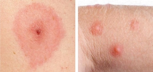 12 видов укусов насекомых и как распознать, какое именно вас укусило