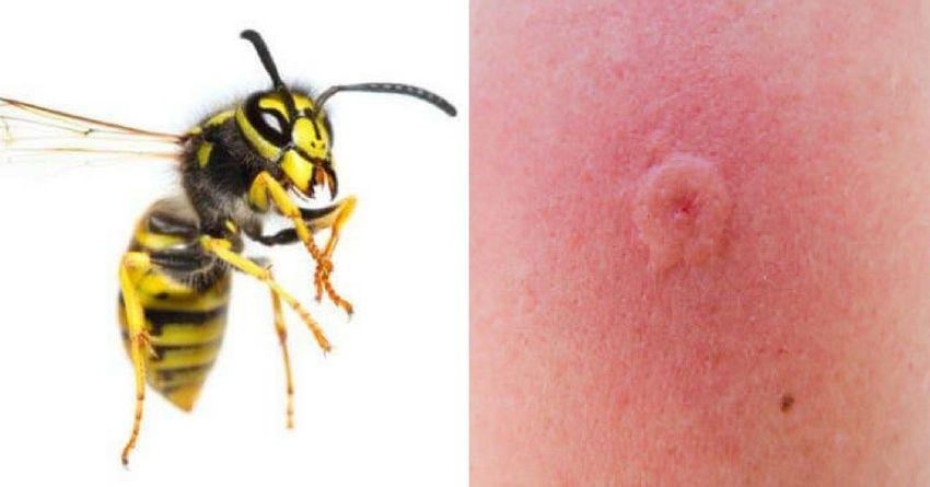 Укус осы на коже