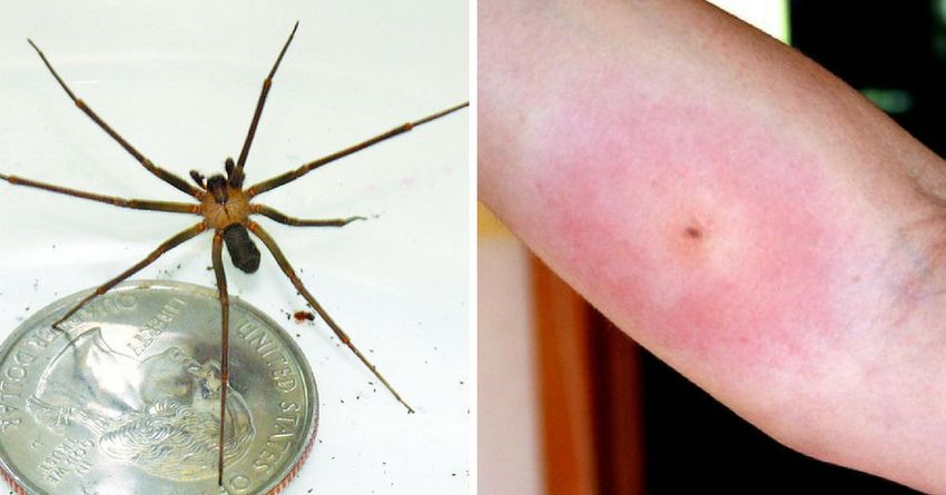 Укус паука-отшельника на коже