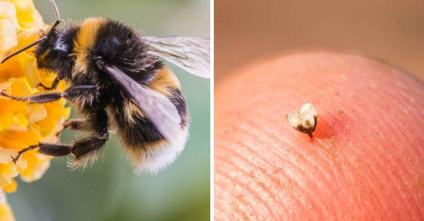 Укус пчелы на коже