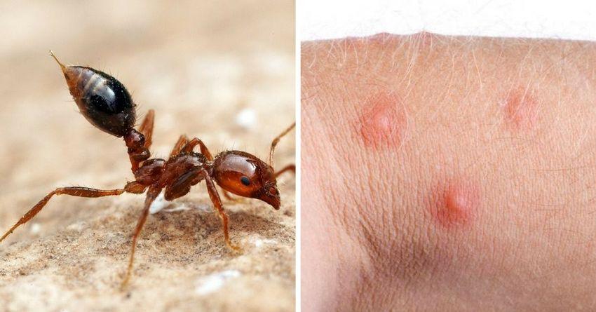 Укус рыжего муравья на коже