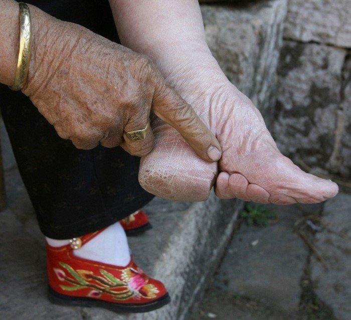Они бинтовали девочкам ноги, уродуя их стопы