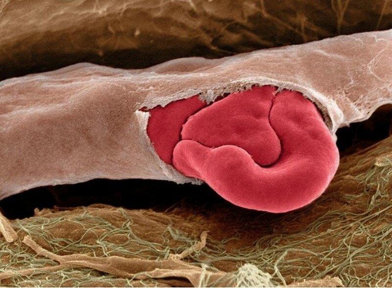 поврежденный капилляр