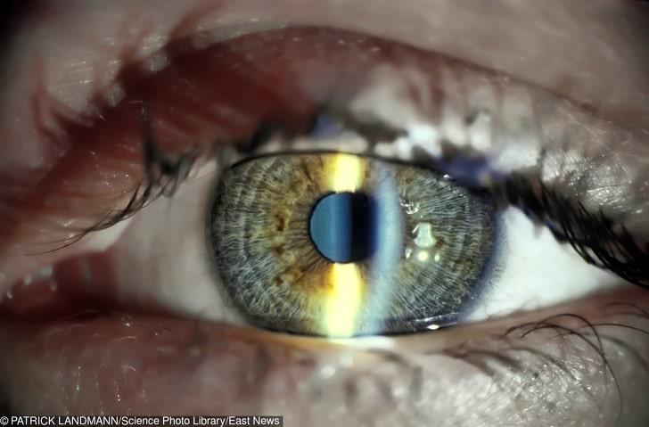 Светодиодные фонари могут вызвать сильное напряжение зрения