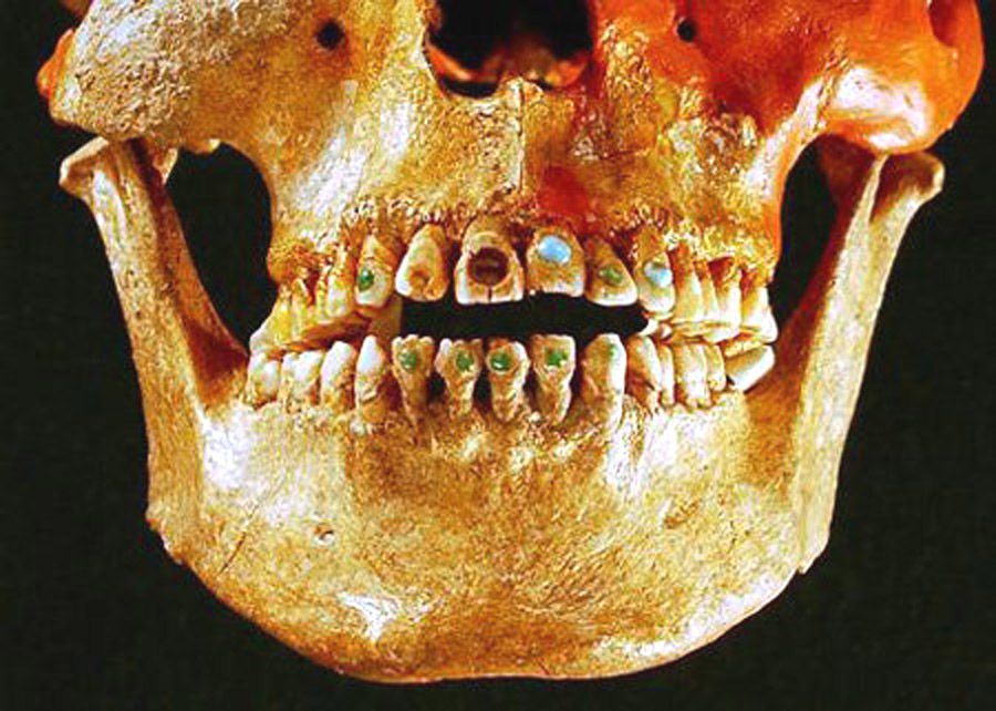 Драгоценные камни в зубах