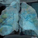 Коронавирус: 3D видео показывает, как COVID-19 разрушает легкие