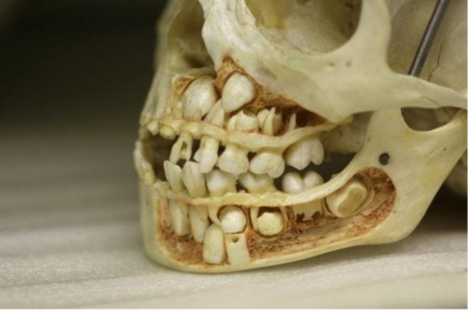 Детский череп до потери молочных зубов