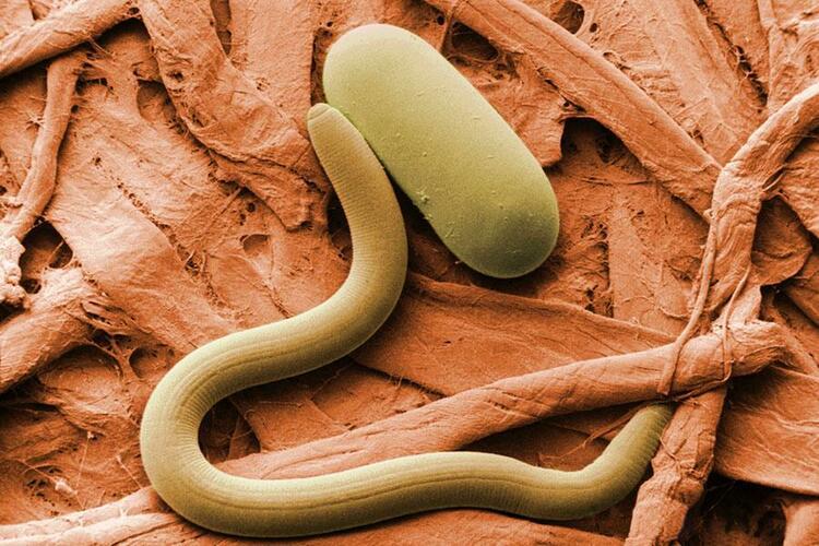 4. Соевая цистообразующая нематода (Soybean cyst nematode)