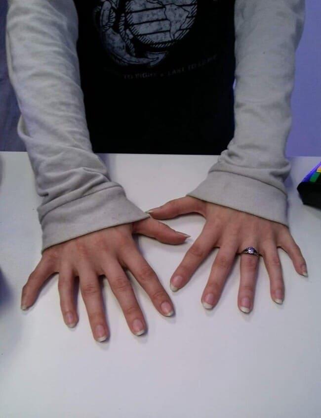 6 пальцев на каждой руке
