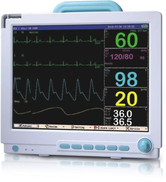 Электрокардиограммы (ЭКГ)
