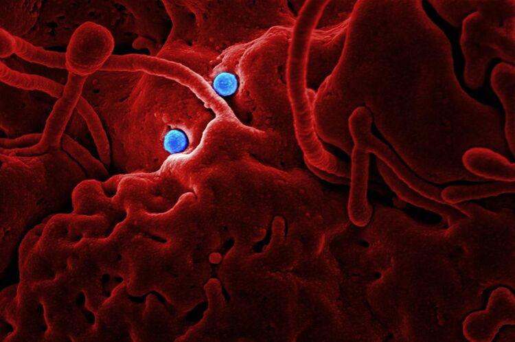 MERS (коронавирус ближневосточного респираторного синдрома)