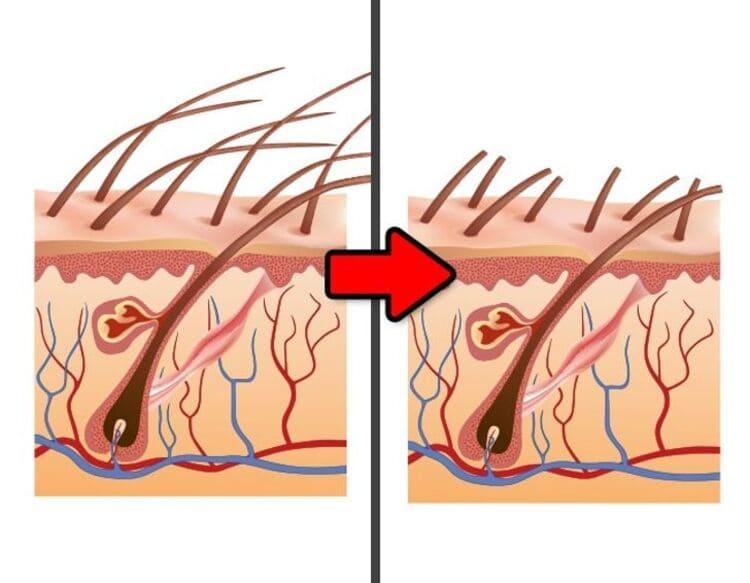 Волосы от бритья становятся толще
