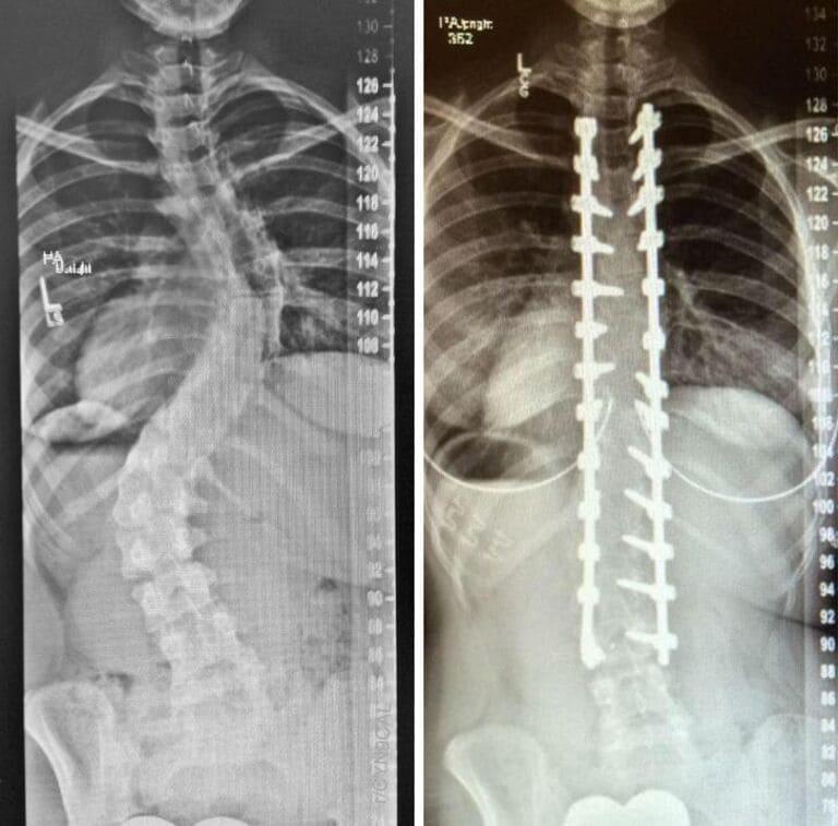 Рентгеновские снимки позвоночника с искривлением