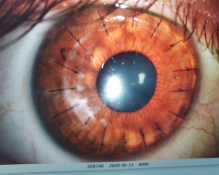 Так выглядит глаз после пересадки роговицы