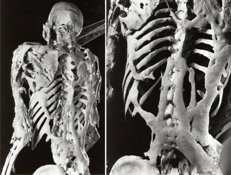 Прогрессирующая оссифицирующая фибродисплазия – ПОФ