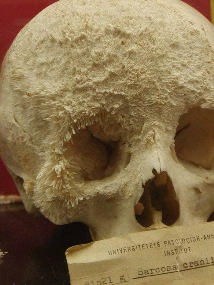 Череп пациента с раком костей